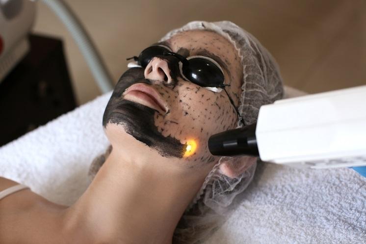 карбоновая чистка лица